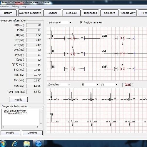 Smart Ecg Viewer Pc Software